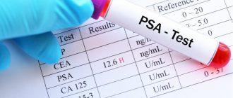 Уровень простатспецифического антигена при раке простаты