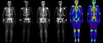 Результаты сцинтиграфии скелета